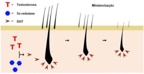 Androtase Alopecia